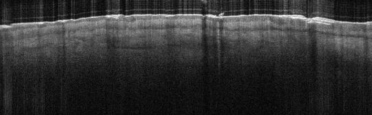 P_VA15_S_231_23-Jan-2012_14.11.39_OCT_Normal_Adjacent_Skin