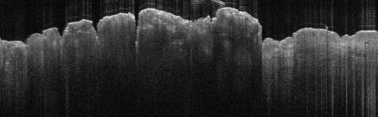 P_VA36_S_329_21-Feb-2012_08.53.39_OCT_Scan