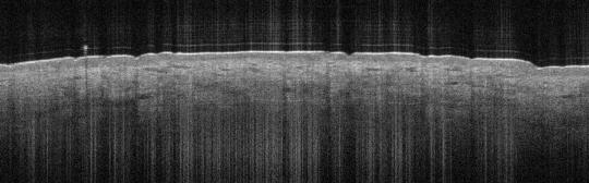 P_VA36_S_332_21-Feb-2012_08.54.46_OCT_NORMAL_ADJACENT