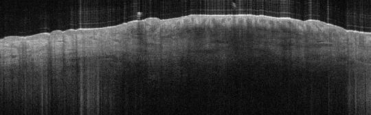 P_VA40_(b)_S_350_21-Feb-2012_10.55.42_OCT_Scan.1