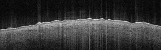 P_VA76_S_625_06-Apr-2012_08.58.50_OCT_NA
