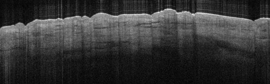 P_VA87_S_693_10-Apr-2012_11.37.58_OCT_NORMAL_ADJACENT
