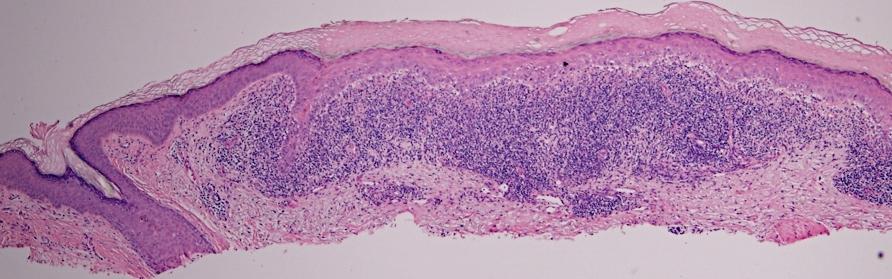 Keratosis Inflamed Keratosis Inflamed