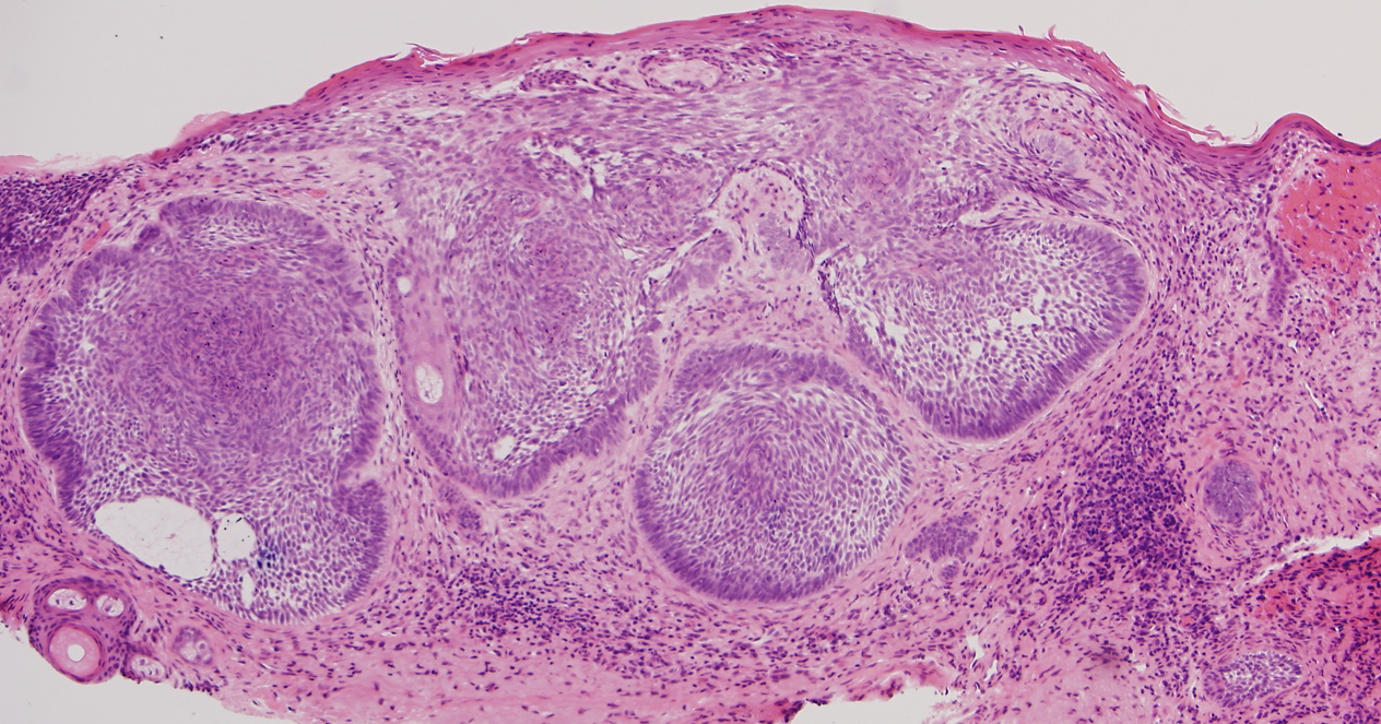 basal-cell-carcinoma-scalp